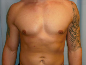 Male Breast Reduction - Gynecomastia