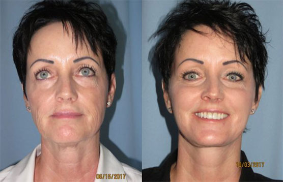 Scottsdale Mini Facelift - Mini Facelift Surgery Arizona